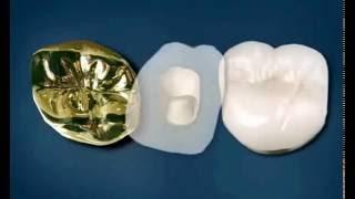 видео Виды коронок для зубов