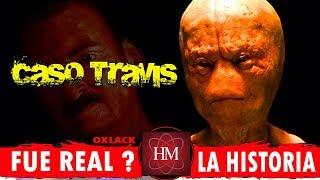 EL CASO DE TRAVIS @OxlackCastro