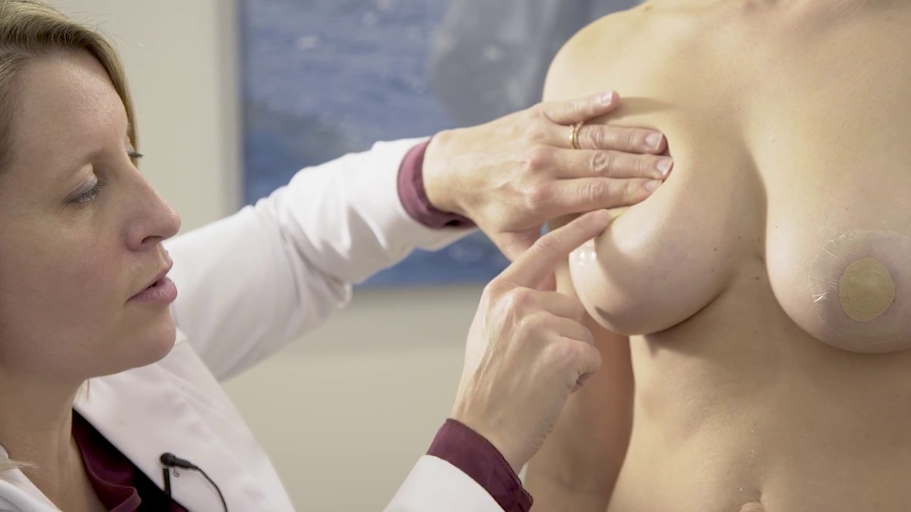 Download Breast Implant Massage With Dr. Christine Fisher