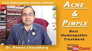 Acne and Pimple Best Homeopathic Treatment | Yash Homeopathic Centre Jodhpur