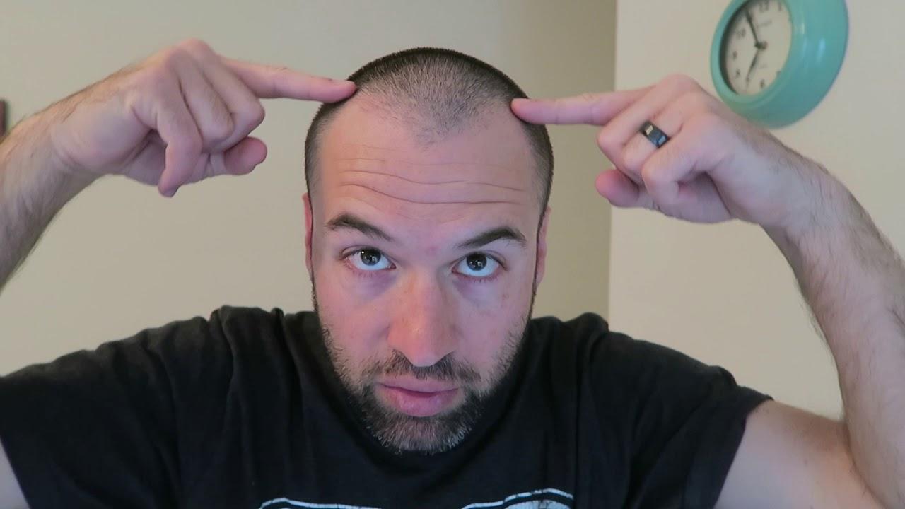Zero Guard Buzz Cut 11 Days Later With Matching Beard Youtube