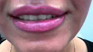 Full Lips Permanent Makeup Before + After March 16, 2012 Thumbnail