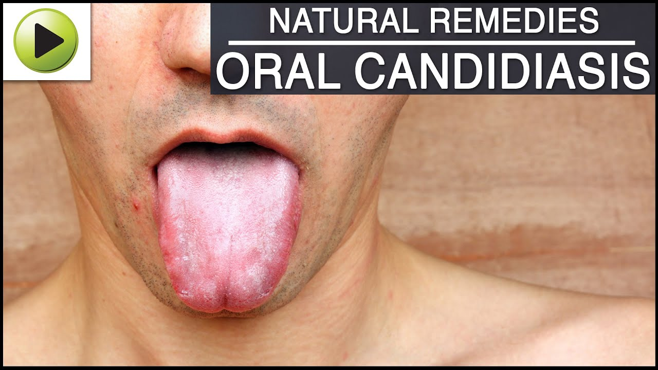 Oral Candidiasis - Natural Ayurvedic Home Remedies - YouTube