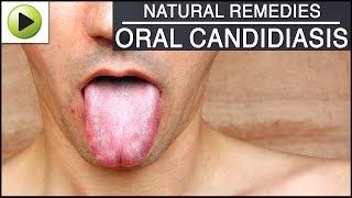 Causes and symptoms of oral thrush - Dr. Jayaprakash Ittigi.