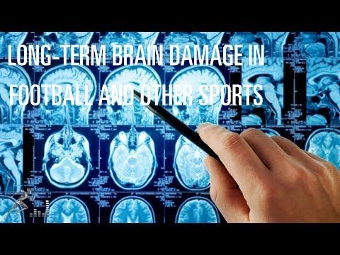 Chronic Traumatic Encephalopathy (CTE)