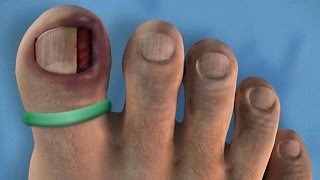 JAM IT IN THERE - Ingrown Toenail and TURKEY Surgery