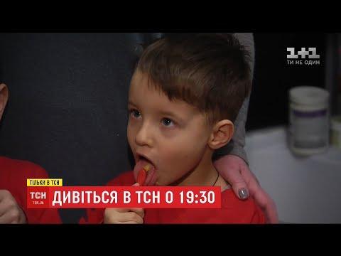 ТСН: ТСН розповість міфи про молочні зуби дитини