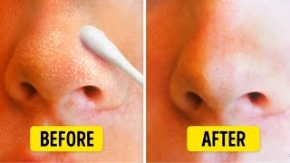 9 NATURAL WAYS TO GET RID OF BLACKHEADS
