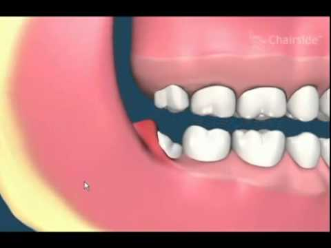 Impacted Wisdom Teeth Removal Animation Youtube