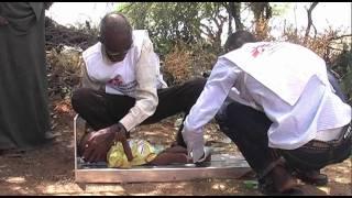 MSF prend en charge des cas de rougeole et de malnutrition à Mogadiscio