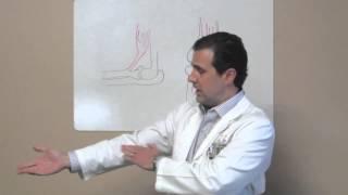 distal biceps tendon repair houston sugar land tx dr j michael bennett