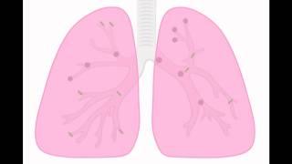 Prevención de las enfermedades respiratorias ocupacionales.