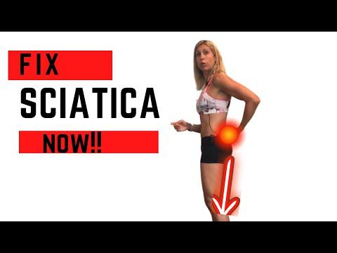 BEST  Exercises To Get Rid Of Sciatica