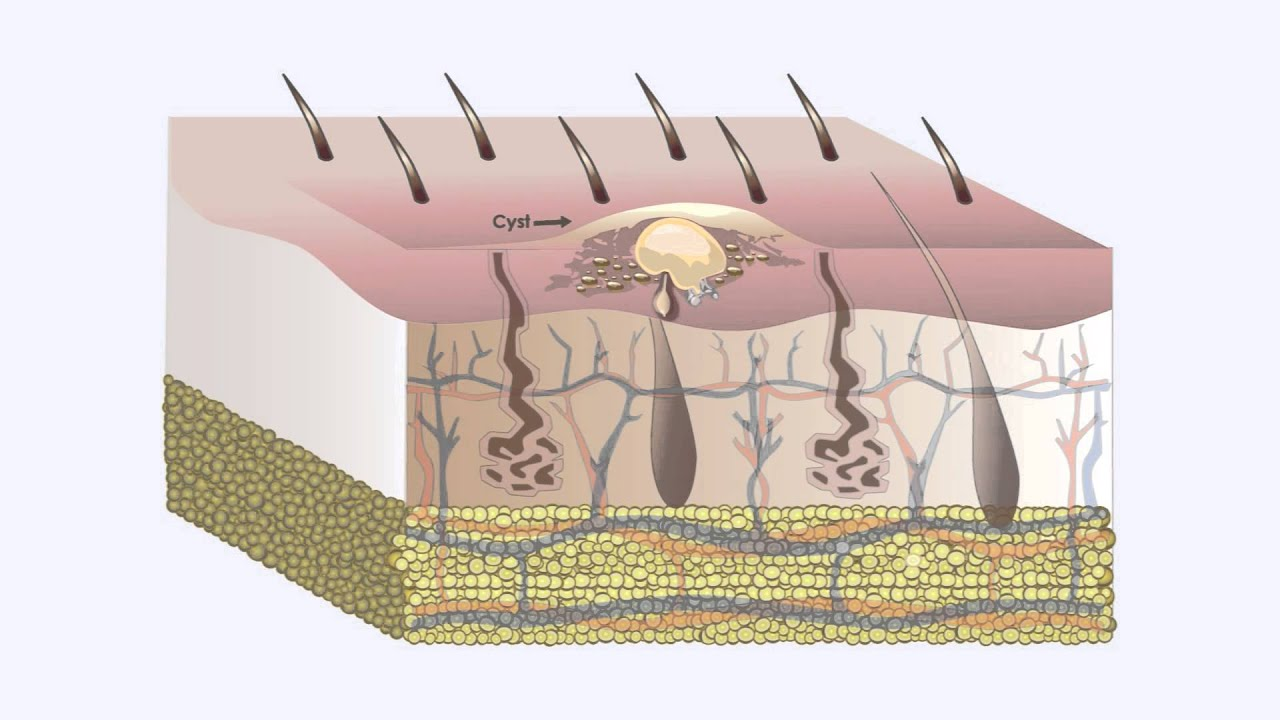 What are the 10 skin diseases?