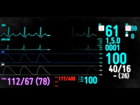 Electrocardiogram Monitor /// After Effects Template