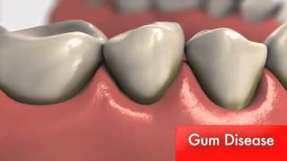Gum Disease: What is the cause?