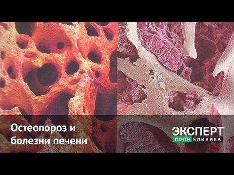 Остеопороз и заболевания печени