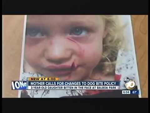San Diego ABC 10 News - Child Dog Bite Controversy