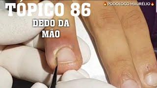 """PARA OS AMANTES DAS UNHAS TÓPICO 86(""""For Feet And Nails Lovers"""")"""