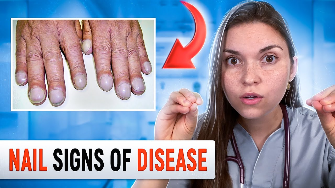 Doctor Explains what your NAILS say about your HEALTH: Top 10 Nail Problems