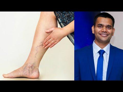 Варикоз вен на ногах- Лечение | Как лечить варикозное расширение вен