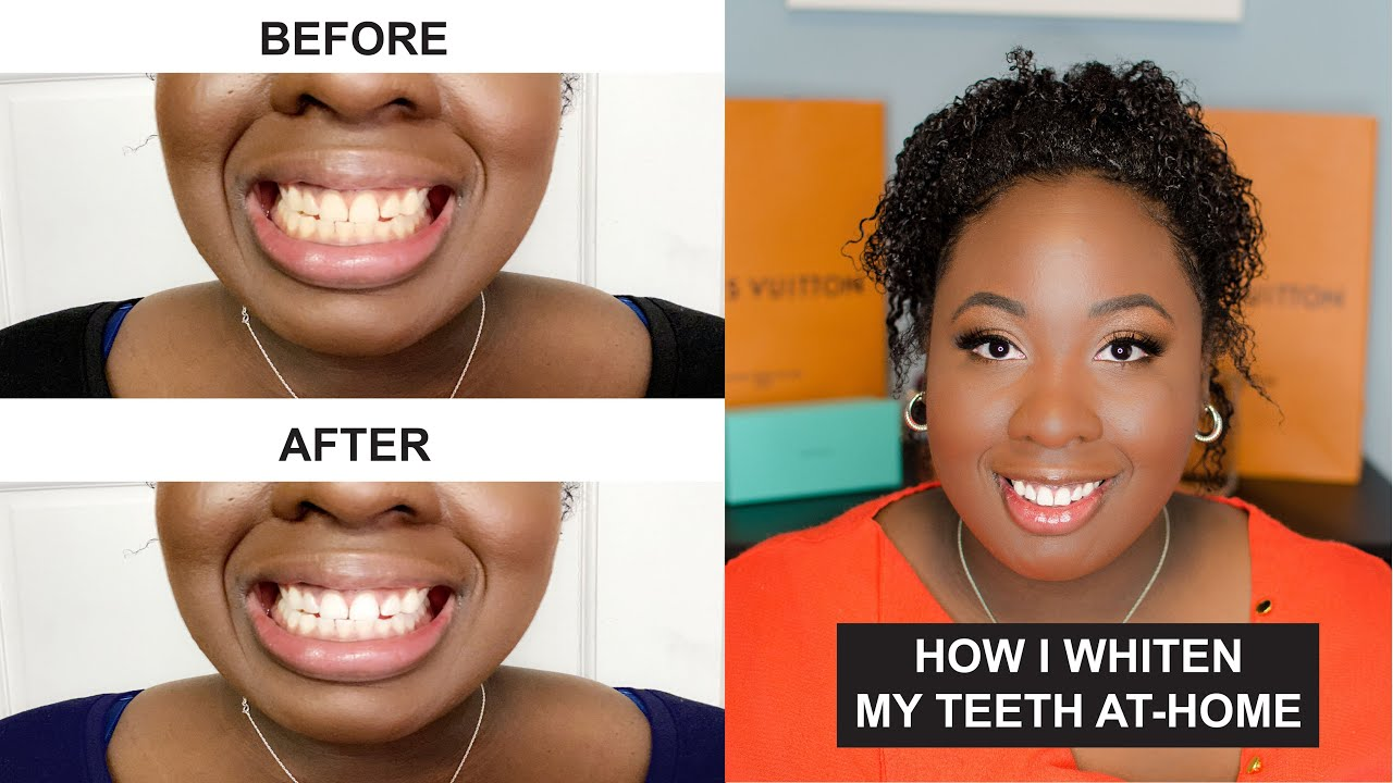 How To Whiten Your Teeth At Home Honest Review Ismile