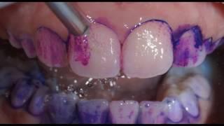 Профессиональная гигиена полости рта. Чистка зубов. Oral hygiene.(Профессиональная гигиена полости рта. Чистка зубов. Oral hygiene. Сначала на зубы наносится индикатор зубных..., 2016-11-07T09:09:34.000Z)