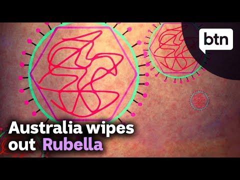 Vaccinations Successfully Wipe Out Rubella Virus In Australia