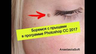 Урок фотошоп № 1 - Как убрать прыщи в программе Photoshop CC 2017 двумя способами? | Уроки фотошоп
