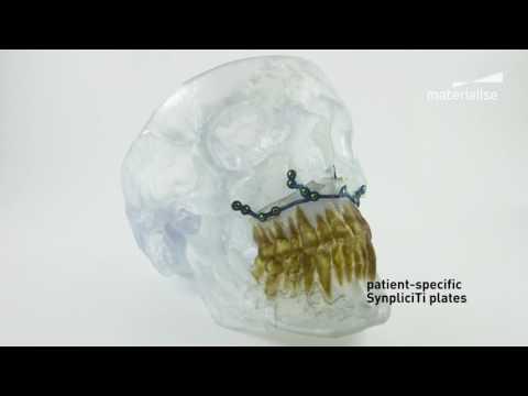 Patient-Specific Cranio-Maxillofacial (CMF) Implants | Materialise SynpliciTi