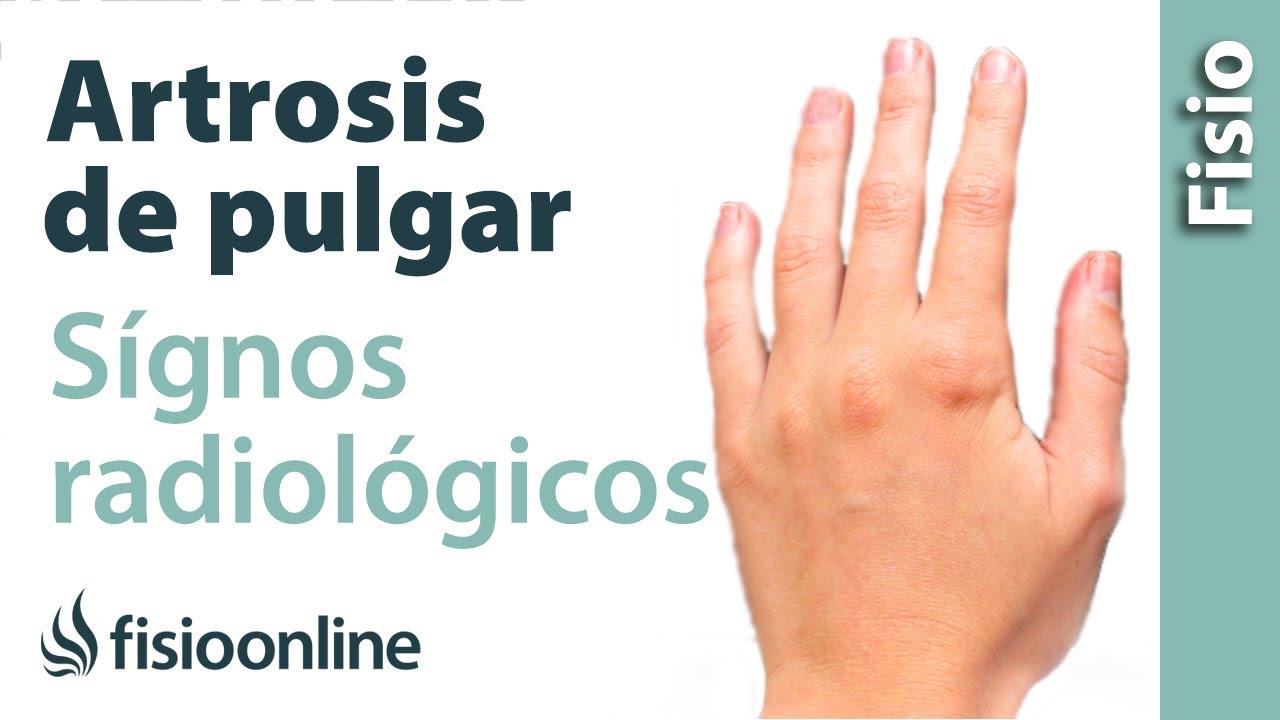 Rizartrosis o artrosis del pulgar - Signos radiológicos - YouTube