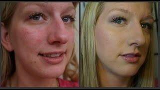 Stay Fabulous Foundation Routine for Acne, Rosacea, Redness, Dark Circles, and Bags!