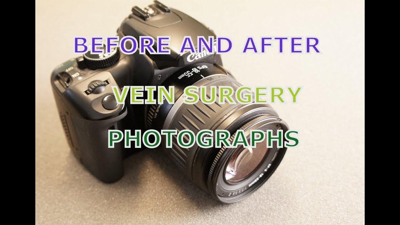 Fotoepilare: contraindicații și consecințe, procedură de vătămare