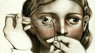 Terrifying Pictures That Reveal The Horror Of Surgery In The Victorian Era