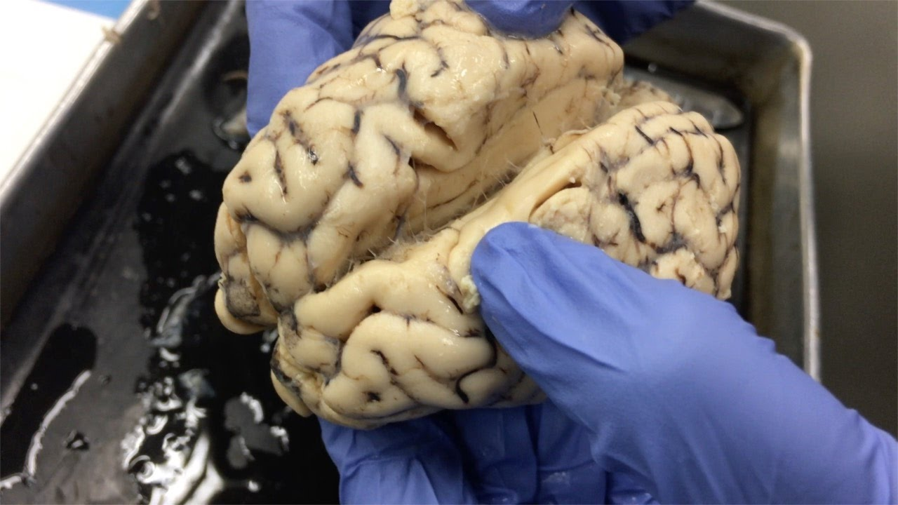 Dissecting a Sheep Brain & Eye - Anatomy & Physiology - 3/7/17 - YouTube