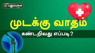 Doctor On Call 16-11-2020 Puthuyugam Tv
