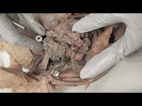 Pig Alimentary Canal Large Intestine, Ileocecal Valve, and descending colon