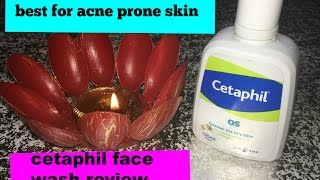 BEST FACE WASH FOR ACNE I CETAPHIL FACE WASH REVIEW  I