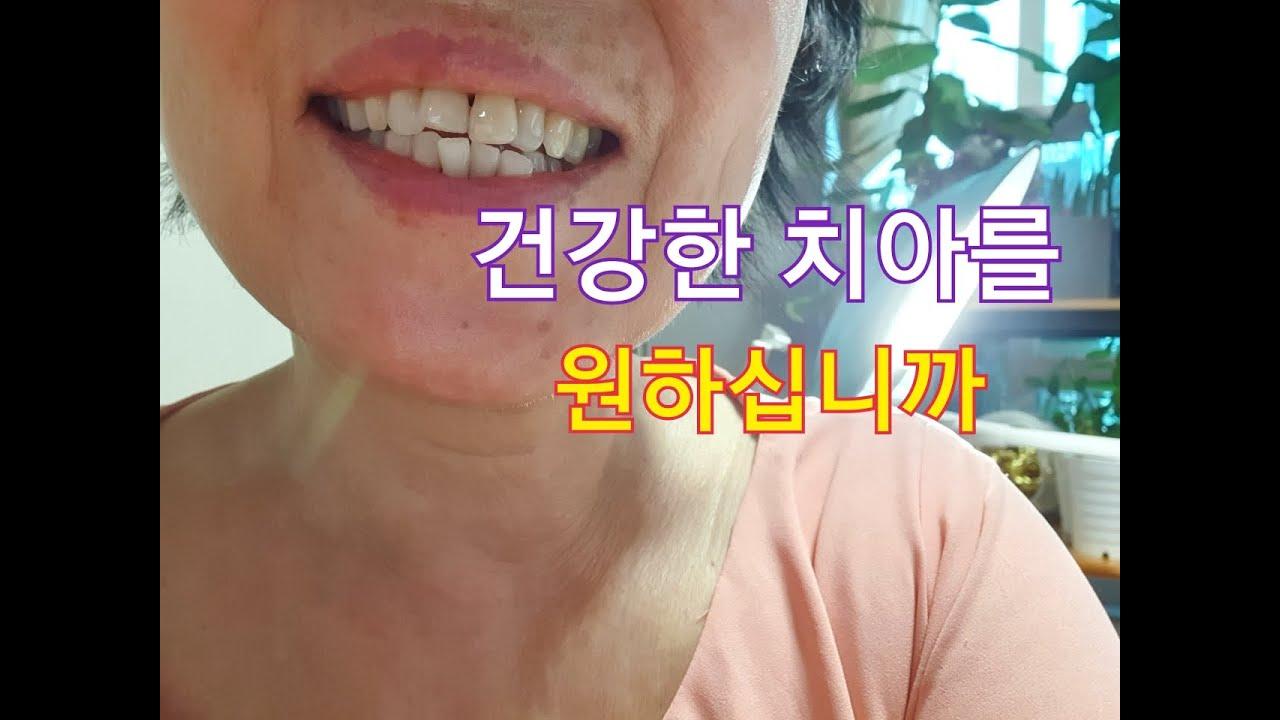 ( 내몸살리기 ) 잇몸질환으로 고생하시는 분들은 위해 준비했어요 # Tips for making healthy teeth