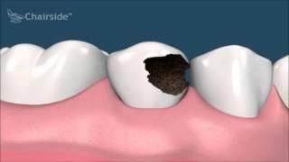 Что делать если сильно разрушен зуб  Лечение  Имплантология  Стоматология