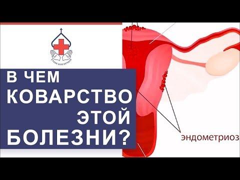 👩 Чем опасен генитальный эндометриоз и как его лечат. Чем опасен эндометриоз. 12+