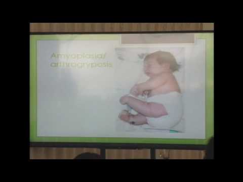 Syndromes of Orthopaedic Significance - Laura K. Jacks, M.D.