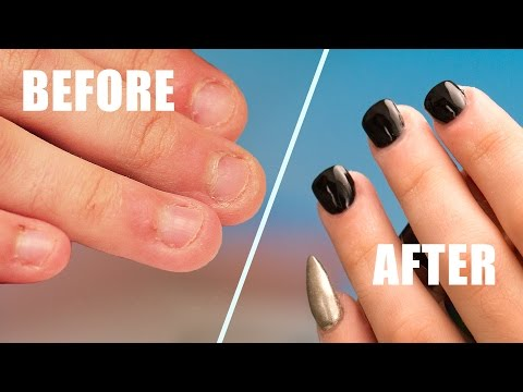 Thumbnail: Fix Short Bitten Nails with Acrylic