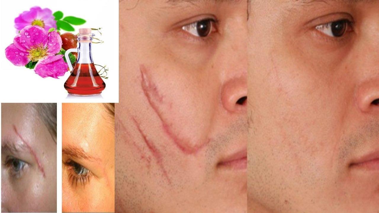 reparer cicatrice acne