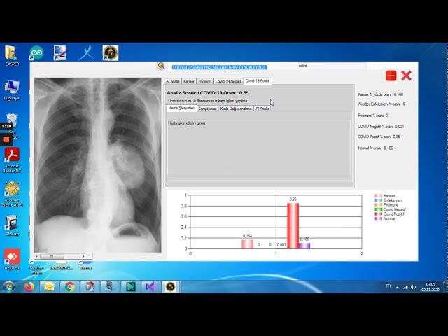 SETINT AI Yapay zeka ile akciğer hastalıkları tespiti -
