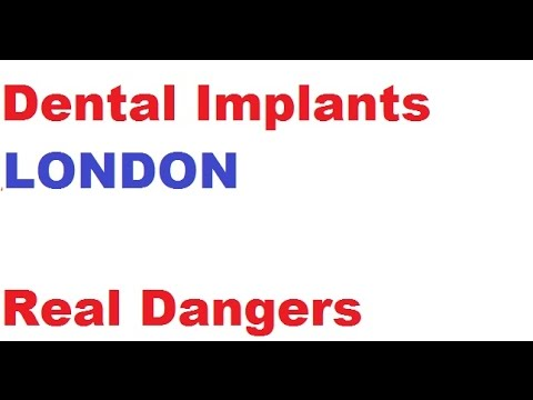 Dental Implants London - WATCH WARNING
