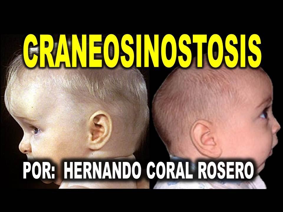CRANEOSINOSTOSIS - CIERRE ANORMAL DE LAS SUTURAS O UNIONES CRANEALES ...