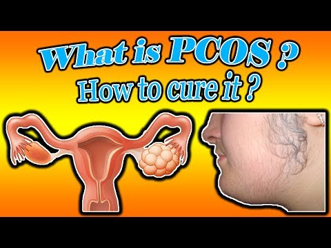 what-is-pcos-in-women?-how-to-cure-pcos-naturally?(explained!!)