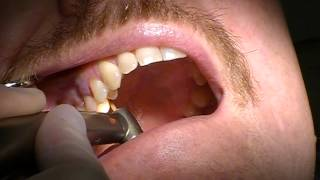 Dr. Tim Kosinski - Tooth Extraction #4 with Physics Forceps