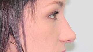 Rhinoplasty Surgical Plan Amanda part 1 of 10 Thumbnail